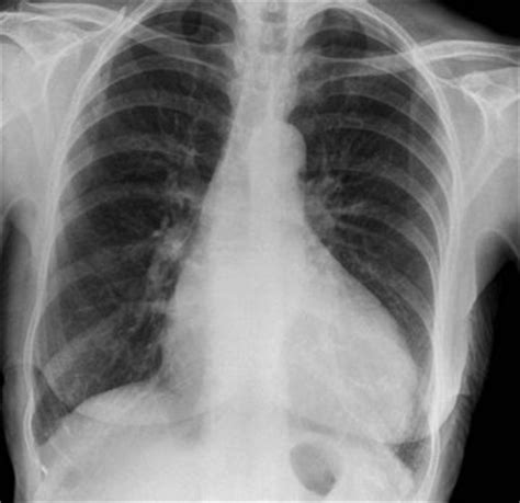 The Advanced Chest X-ray Study Day - Radiology Courses