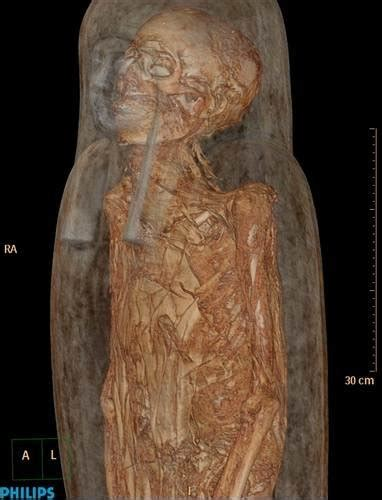 Inside the coffin - Photos: 3000 year old mummy seen using