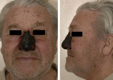 Necrosis of nose skin after varicella zoster infection: A